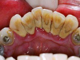 cara sederhana menghilangkan karang gigi dengan membersihkannya