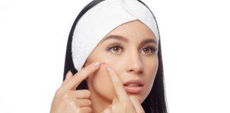 Cara Menghilangkan Flek Hitam pada Wajah dengan Cepat